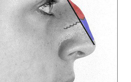Muži pod skalpelem – plastika nosu